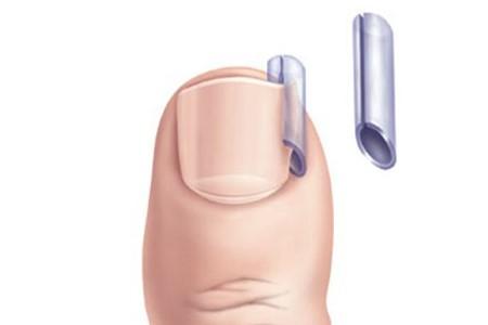 Утолщение ногтей на ногах лечение отзывы